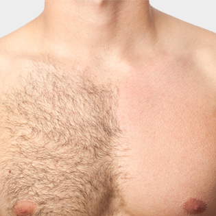 Chest waxing